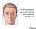 Asymptomatic conditions
