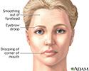 Facial drooping