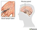 Growth hormone stimulation test