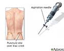 Bone biopsy