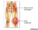 Sciatic nerve damage