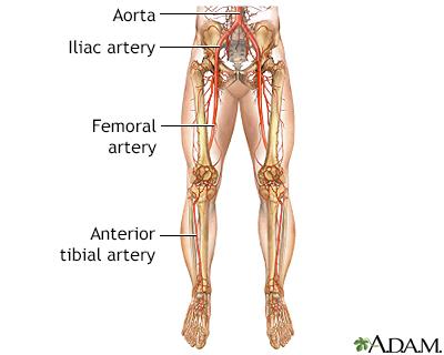 Peripheral artery disease - legs