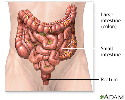 HIE Multimedia - Colon and rectal cancer