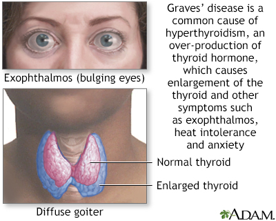 In Depth Reports Hypothyroidism