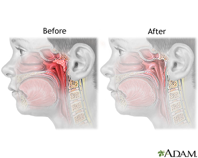 Adenoid removal