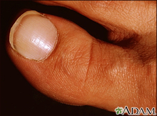 White nail syndrome