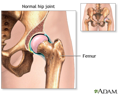 Hip joint replacement - series - Normal anatomy