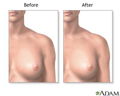 Lumpectomy benign breast mass