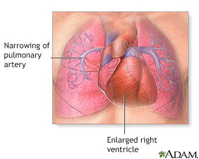 Primary pulmonary hypertension