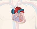 Congenital heart defects (CHD) - Blood flow