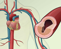 Cardiovascular disease - description
